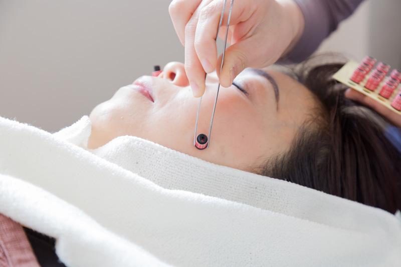 美容鍼灸とはどんな施術?